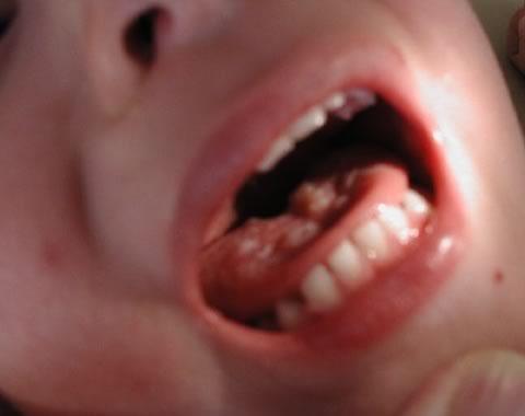 Как выглядит влагалище у детей фото