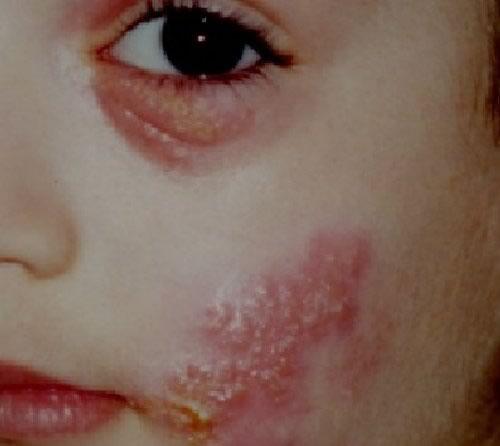 Фотогалерея: Герпетическая инфекция (простой герпес) у детей Педиатрия